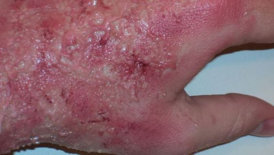 8 Effective Remedies for Burns That You Have in Your Kitchen !!