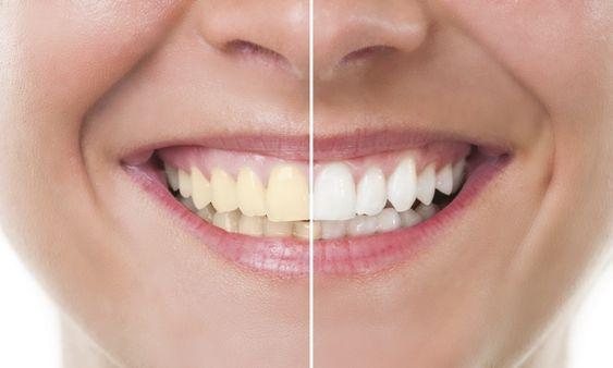 chữa răng ố vàng