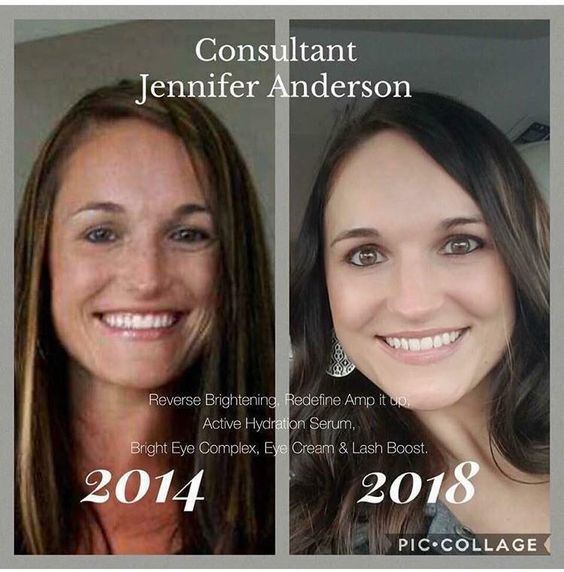 Rodan Fields Is The 1 Skincare Brand In North America For This Reason Right Here Look At Jennifer S Ski Rodan And Fields Skin Care Skincare For Oily Skin