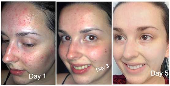 This Oil Cleansing Method Will End All Your Skin Problems In