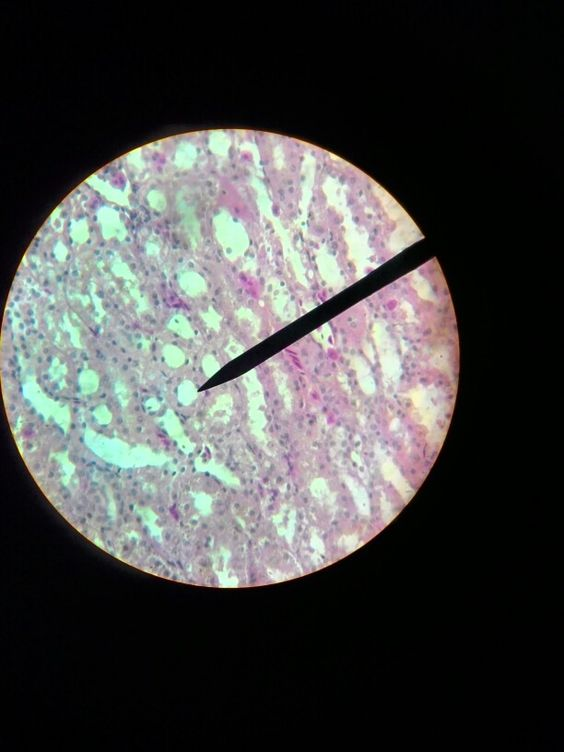 Simple cuboidal epithelial cells.