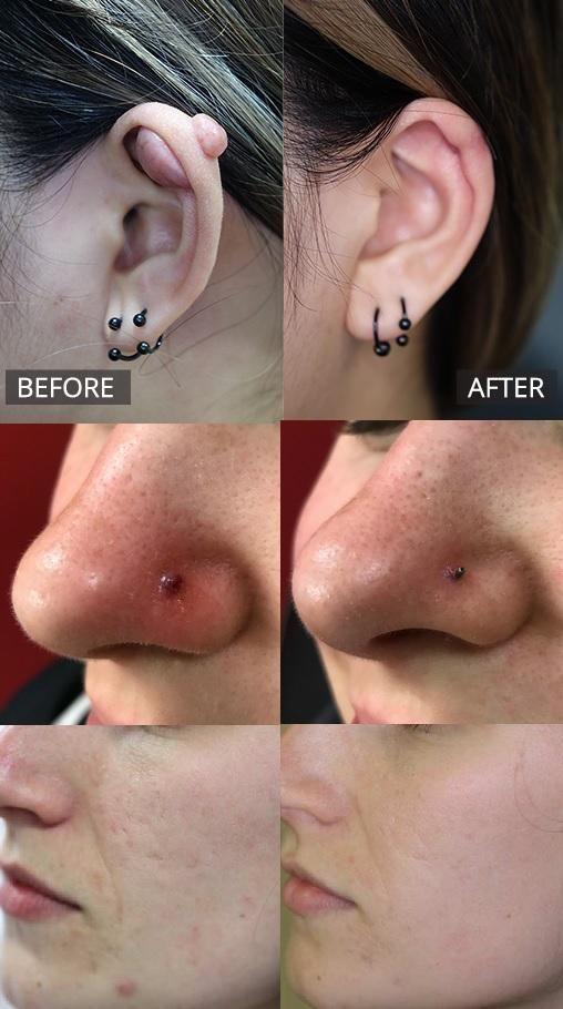 Pin On Nose Piercing