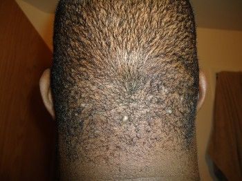 how to stop sweat pimples on back