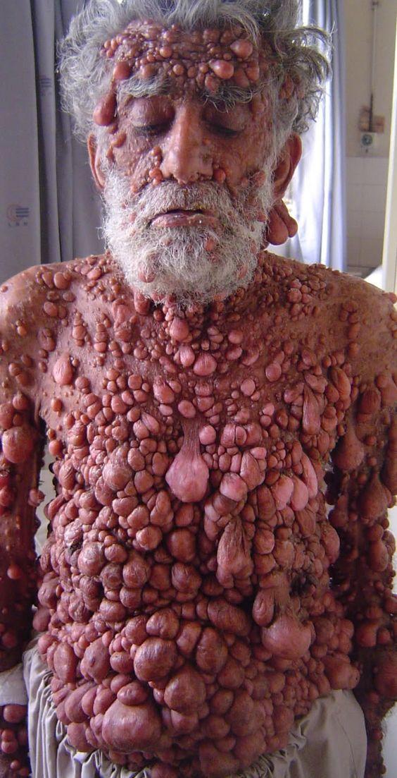 Epidermodysplasia Verruciformis Tree Man