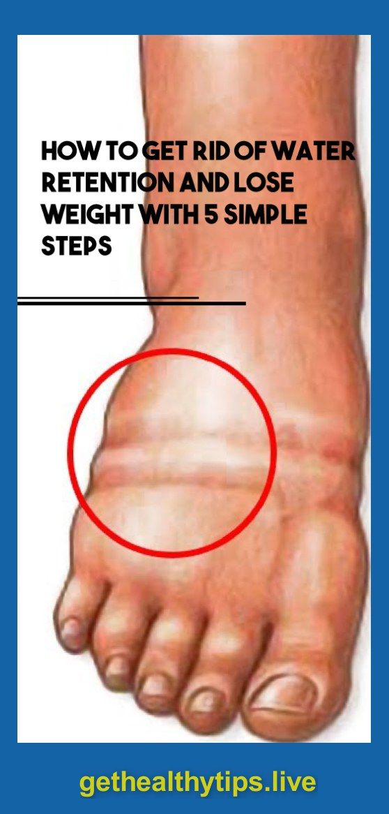 How To Get Rid Of Water Weight In Feet
