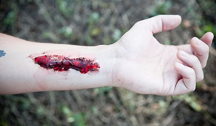 FIRST-AID: TREAT A GAPING WOUND... Because a gaping wound like this has a high risk of infection, proper first aid is essential. Note: For obvious reasons, this is a simulated injury.