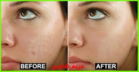 تعتبر مشكلة حبوب الوجه من أكثر المشاكل التي تواجه الكثير في مختلف الأعمار من الجنسين ولكن أكثر فئة Dark Patches On Skin Eliminate Wrinkles Sensitive Skin Care