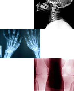 hernias de ballroom y artrosis