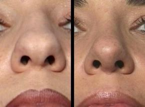 Broad Nasal Tip Rhinoplasty History Of The Procedure Problem