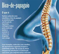 A Osteofitose Bico De Papagaio Como E Mais Conhecida E Uma