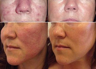 How to Treat Rosacea at Home