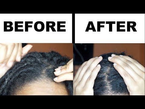 home remedies for itchy scalp with dreadlocks