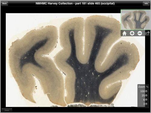 El #cerebro de #Einstein, una app obligada para neuro.científicos, pero también para el resto del mundo....con #iPad, eso sí