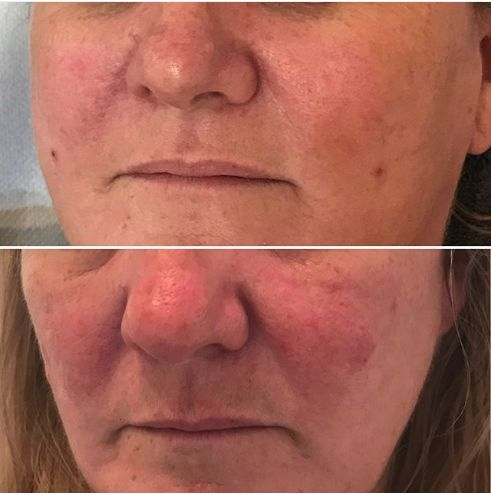 Excellent Results Achieved By Our Phformula Skin Specialists In The Uk After 2 Chronic Redness Treatments In Combination Skin Specialist Skin Bar Ph Formula
