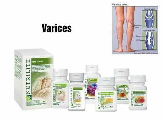 tratamentul medical al venelor vene pe picioare