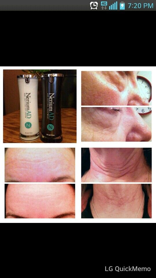 Now this woman was smart! She paired up her Nerium as day and night cream for 24 hours of use! Look at her amazing results! www.welivehappy.nerium.com