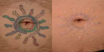 Wrecking Balm Tattoo Removal Reviews - Tattoo Collections