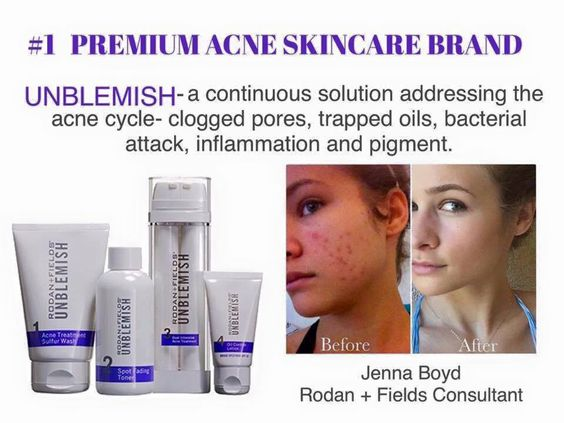 This is actress Jenna Boyd. Doesn't her skin look amazing  now! She suffered with acne and had to put her acting career on hold because her acne was so bad that it was making going to auditions difficult...and that is very hard on a young woman! Her Mom came to an R+F event, heard about UNBLEMISH and purchased it for her!  Now she and her mom are Consultants! If you, or anyone you know, needs help with a skin issue, please message me and let me help. indra.arman@gmail.com
