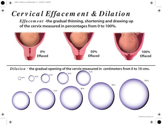 Cervical Effacement And Dilation Chart Google Search