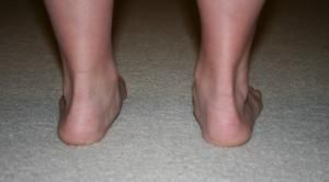 exercises for correcting overpronation: Foot Exercises, Feet Exercises, Tibial Torsion Hyperpronation, Strength Training For Kids, Fitness, Health, Overpronation Correction, Overpronation Exercises