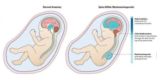 Fetal anatomy means