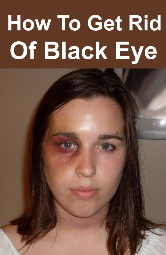 e883c30b26bca35a54541ce646d23c4d - How To Get Rid Of A Black Eye Really Fast