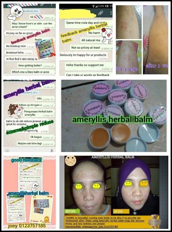 #ameryllis herbal balm thanks for loyal and #happy customer feedback towards our product which help #pimple #scar#headache #legs scar #mosquitobite#stomache#neckache#rashes#sensitiveskin#stretchmarks #relaxing interested pls pm me joey to place order now #price#affordable only rm30 west msia east rm40 free pos laju.each ingredients are carefully selected and handmade by ameryllis nature.how to order wechat /instagram /line joey2383 /whatsapp0123757185 www.joeyshoppingmalls.blogspot.Com