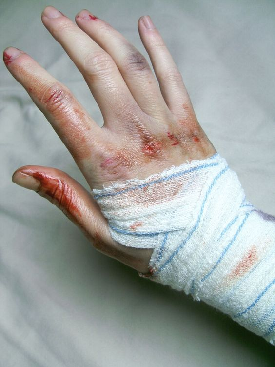 OMG my finger is bleeding, it hurts to type. What do i do?