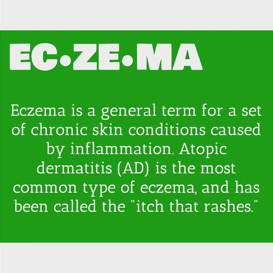#augustsholbox featured @salcura_naturals #DermaSpray which is a natural liquid moisturizer and helps to subside #eczema.  #Ezcema is a medical condition in which patches of skin become rough and inflamed with blisters that cause itching and bleeding sometimes resulting from a reaction to irritation.  There is no cure for #eczema but in most cases it is manageable. The word eczema comes from a Greek word that means to effervesce or bubble or boil over.  #Atopic Dermatitis(which is often…