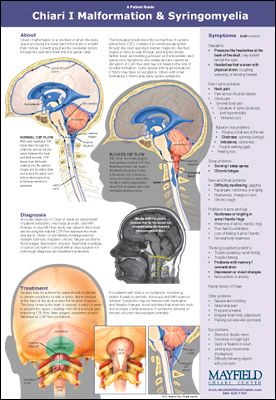 medical illustration of Developed with an advisory board of former patients, this 2-sided poster is designed for both physicians and patients to increase awareness of adult Chiari malformation. The Patient Guide (shown above) is designed for hanging in the physician's office. The flip side is a Clinical Practice Guide for primary care physicians.