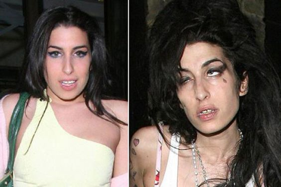 15 Famous Drug Addicts: Before and After Pictures | New ...