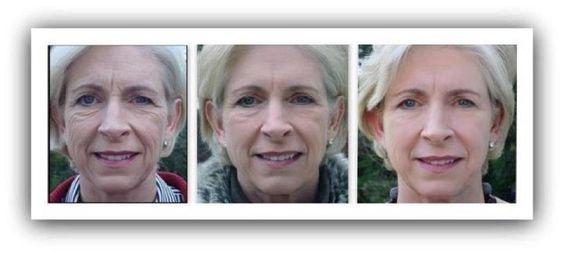 INCREDIBLE RESULTS!        Changing Skin | Changing Lives™ www.kcnewton.myrandf.com