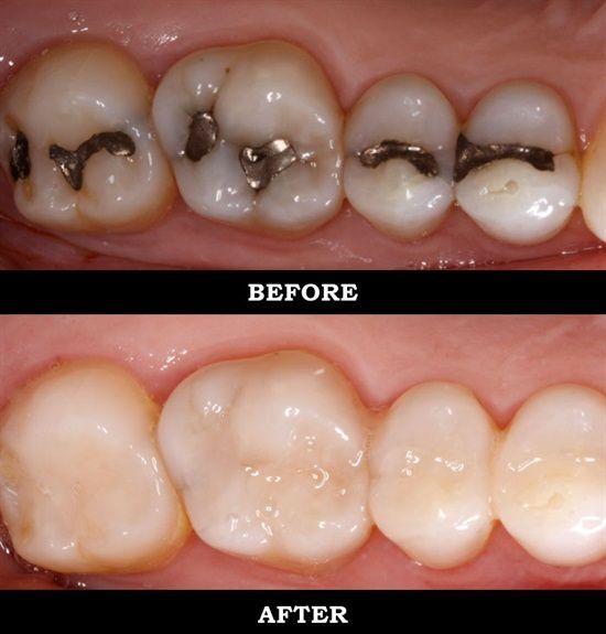 Metal fillings vs. white composite fillings