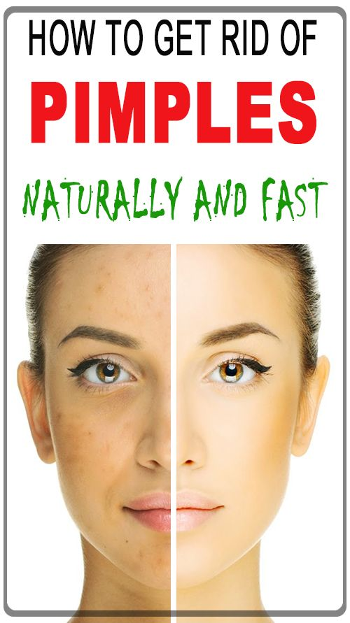 How To Get Rid Of Pimples Instantly How To Get Rid Of Pimples Overnight Natural And Fast Howto Pimple Skincare Face How To Get Rid Of Pimples How To Get Rid Of Acne Pimples Overnight