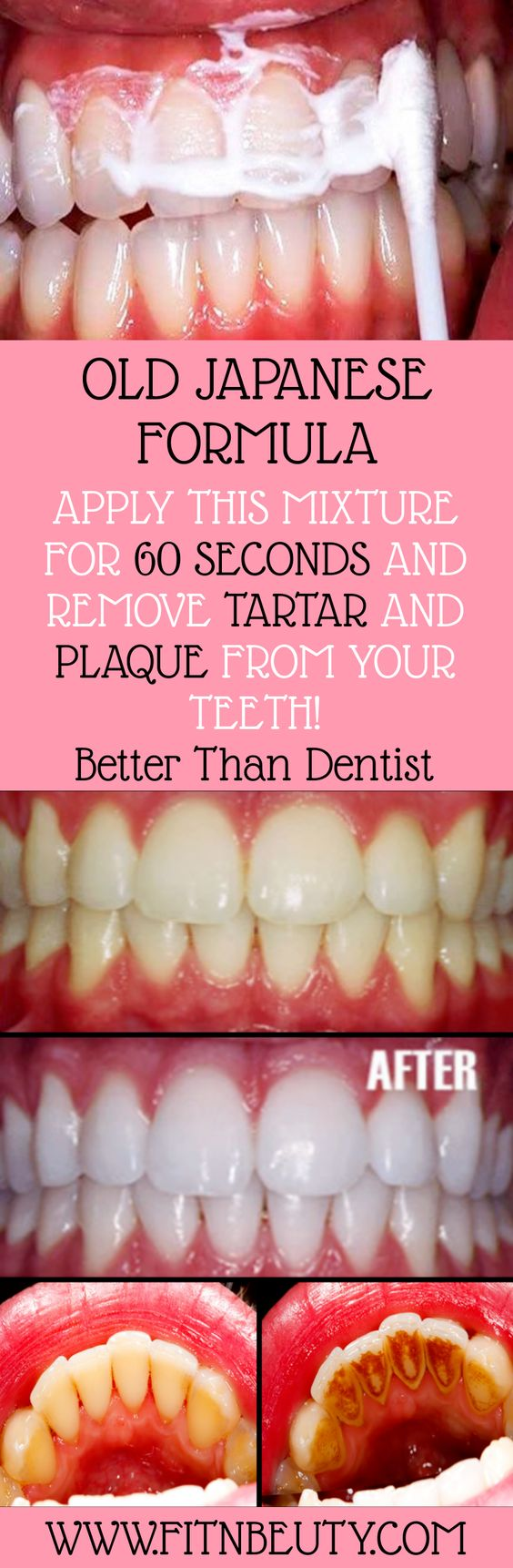 OLD JAPANESE FORMULA APPLY THIS MIXTURE FOR 60 SECONDS AND REMOVE TARTAR AND PLAQUE FROM YOUR TEETH! Better Than Dentist