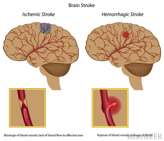 e98f2dd1a7ef36a0134770c36b4bc4c4 massive stroke healthy life a diagram of an ischemic stroke and a hemorrhagic stroke, both stroke diagram at aneh.co