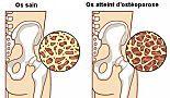 8 aliments qui préviennent l'ostéoporose