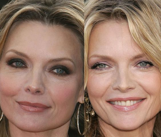 10 Best botox before and after pics images | Botox before ...