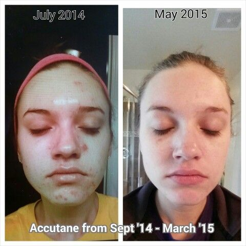 Accutane Before And After Took For 6 Months Used Scaraway Scar Diminishing Serum For 1 Month After To Reduc Acne Scar Removal Acne Treatment Scar Removal