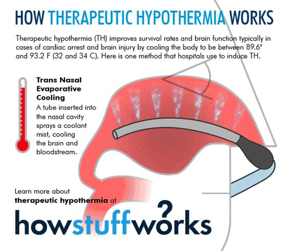 Targeted Temperature Management (Therapeutic Hypothermia)