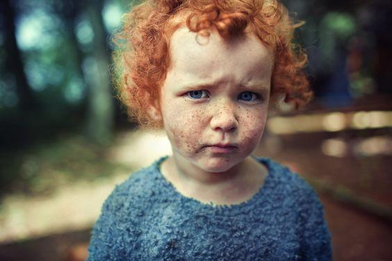 freckles . pout