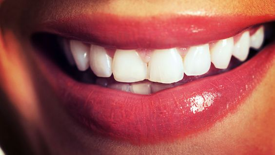 """""""I Tried Oil Pulling For A Month, And This Is What Happened"""" 