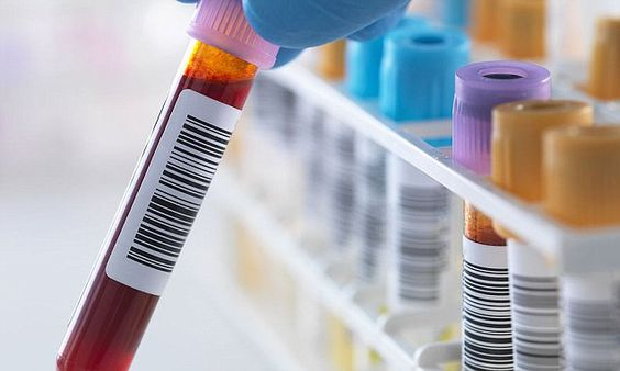 Simple blood test 'finds cancer BEFORE the symptoms start'