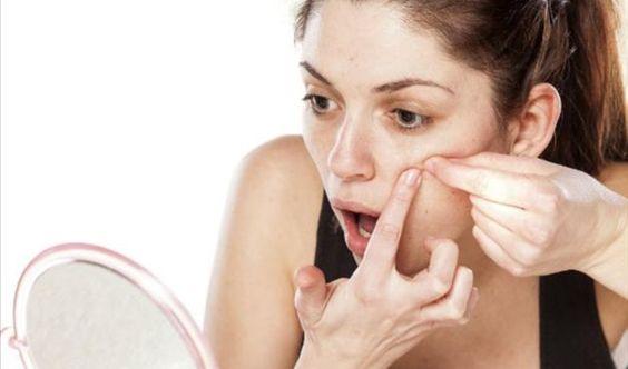 Espremer este tipo de acne pode gerar furúnculos e cicatrizes
