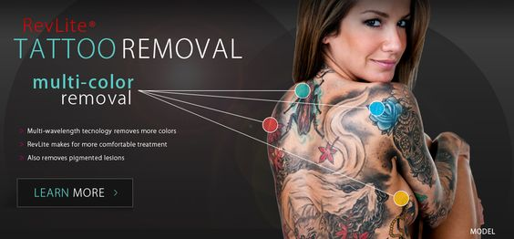 Check out out tattoo removal http://www.accentscosmeticsurgery.com/services/revlite/