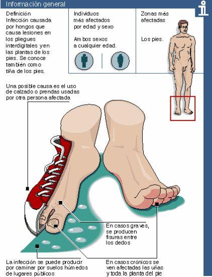 Ayuden al niño el hongo de las uñas en los pies