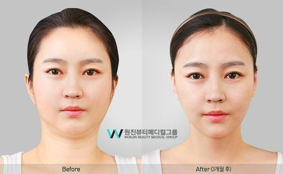 woman profile before and after cosmetic surgery  forehead implant  eyelid surgery  rhinoplasty