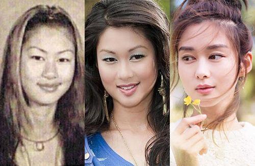 Eliza Sam Had Eyelid Surgery Eyelid Surgery Surgery Plastic Surgery
