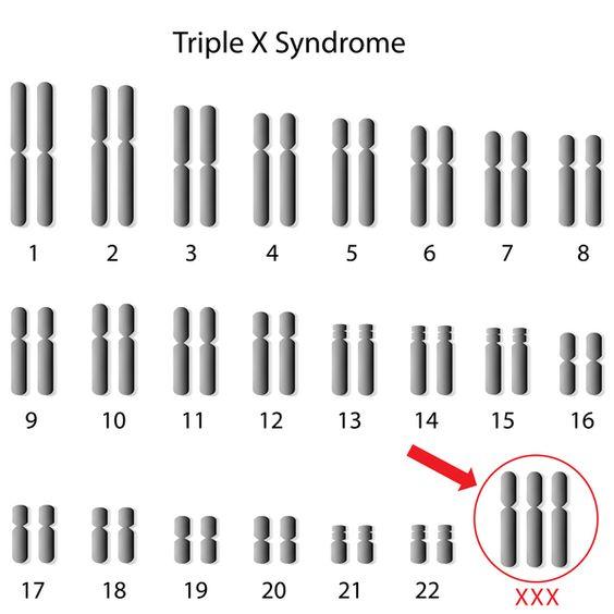 Triple X syndrome karyotype