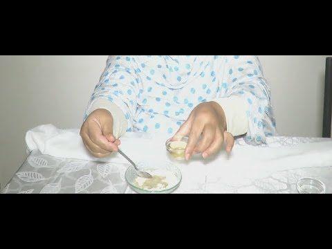 علاج الشقيقة او الصداع النصفي بابسط الاشياء Migraine Youtube